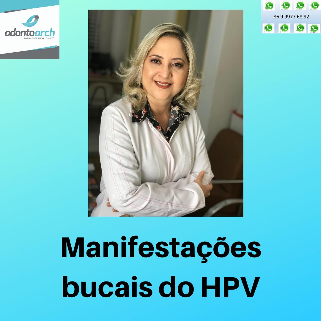 Manifestações bucais do HPV