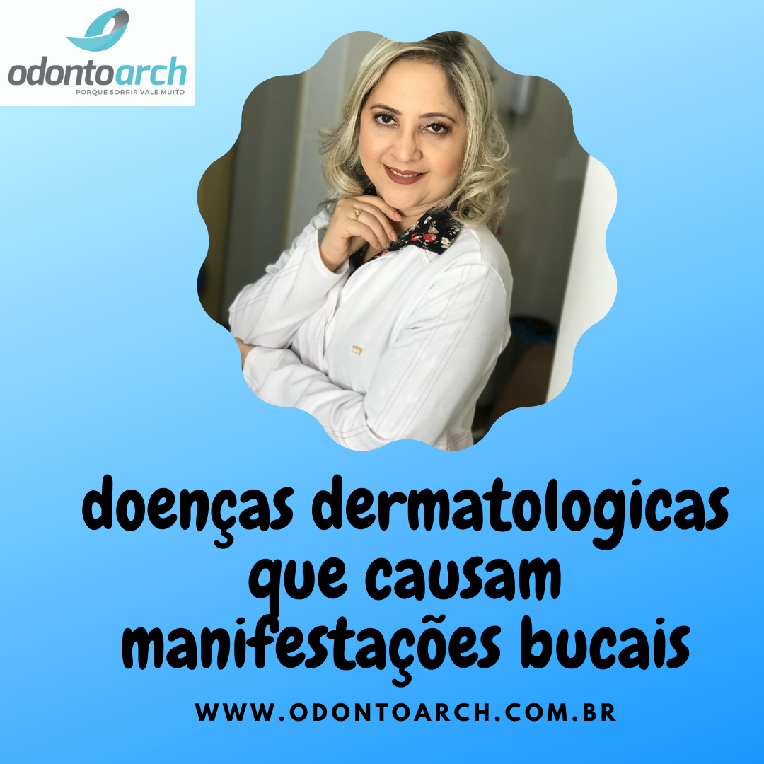 Doenças dermatológicas que causam manifestações bucais.