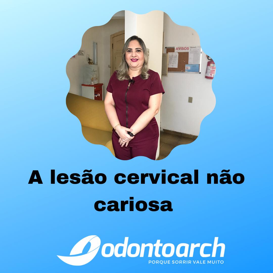 A lesão cervical não cariosa, vamos entender mais sobre ela?